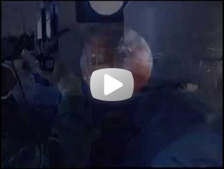 Uretero Flexível - Parte IV